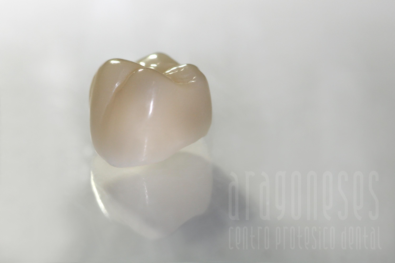 corona ceramica de zirconio 4