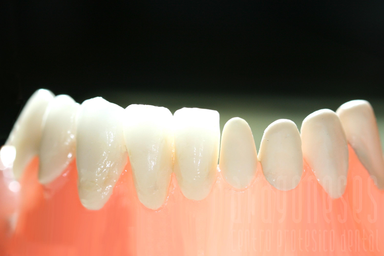 rehabilitacion dental estetica de zirconio con ceramica