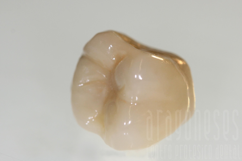 corona metal ceramica