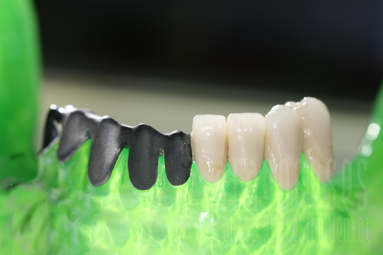 protesis cromo cobalto sinterizado 1