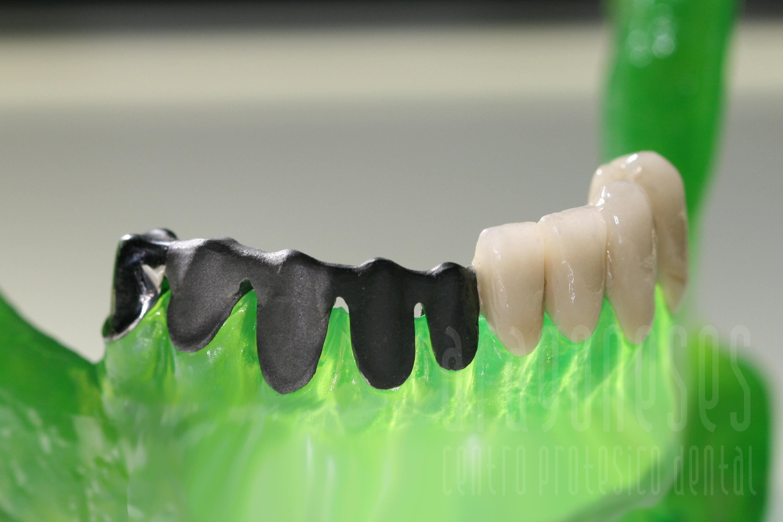 protesis cromo cobalto sinterizado 2